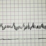 filtr-analogovix-signalov